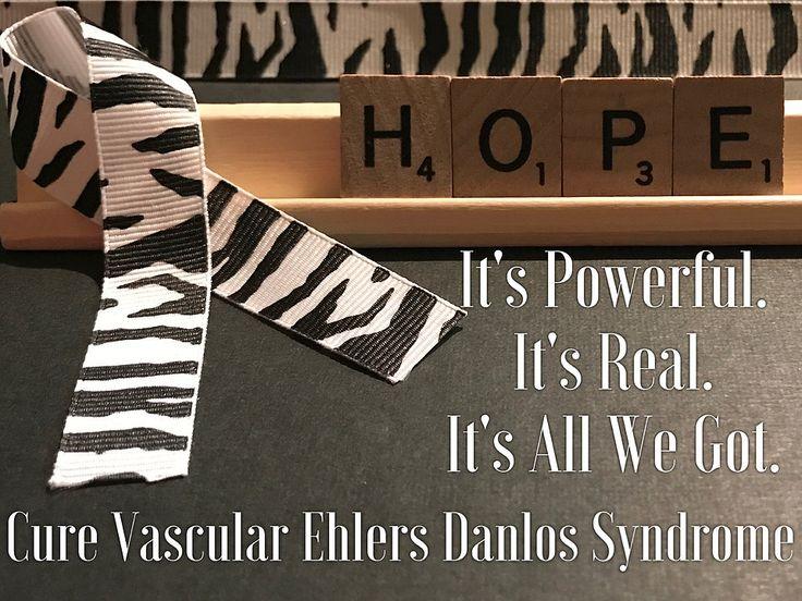 Hope Vascular Ehlers Danlos Syndrome Awareness