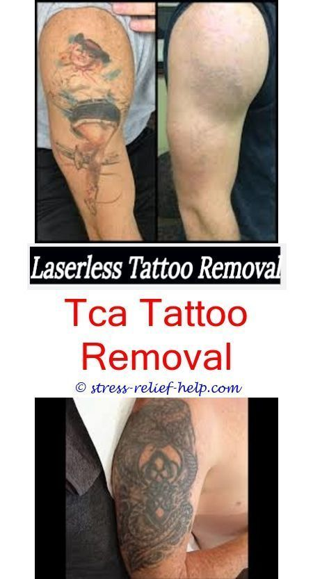 Temporary Tattoos Laser Tattoo Removal London How To Have A Tattoo
