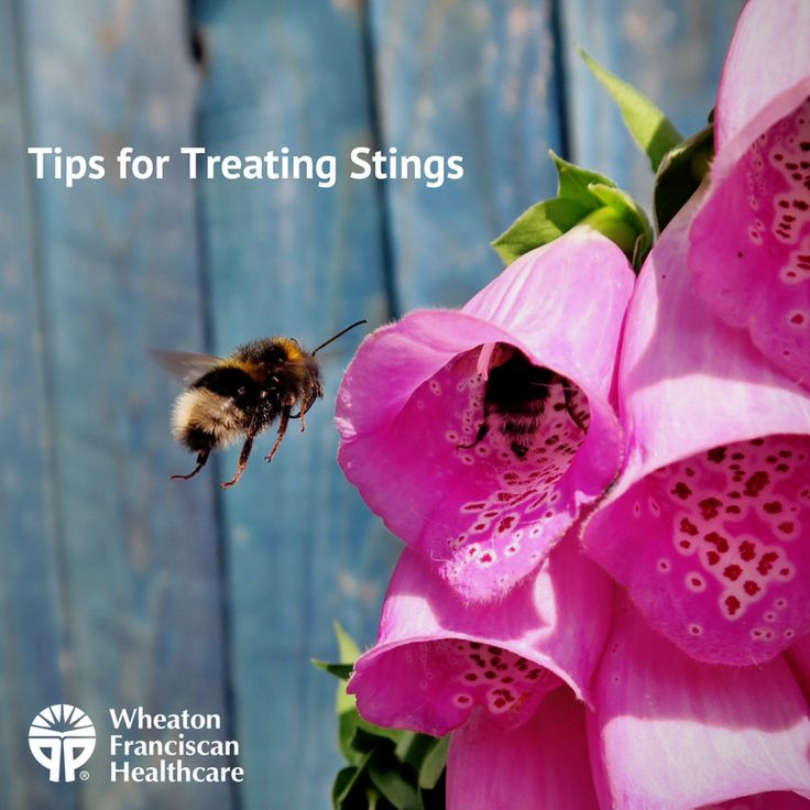 how to take the sting out of wasp sting