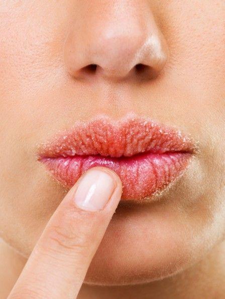 Argghhhh, das Gefühl, wenn die Lippen trocken sind und du einfach nichts dagegen tun kannst, ist schrecklich. Ich hab meine persönliche Geheimwaffe dafür. Vielleicht hilft sie dir ja auch.