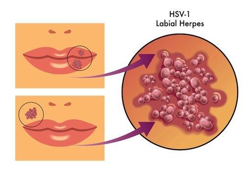 COSA FARE IN CASO DI HERPES