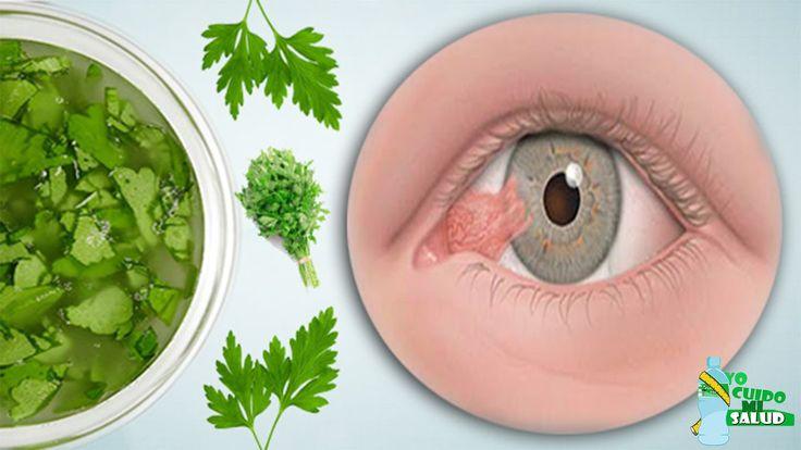 Con Esta Hierba Se Puede Prevenir Hasta 9 Enfermedades De Los Ojos  Incl...