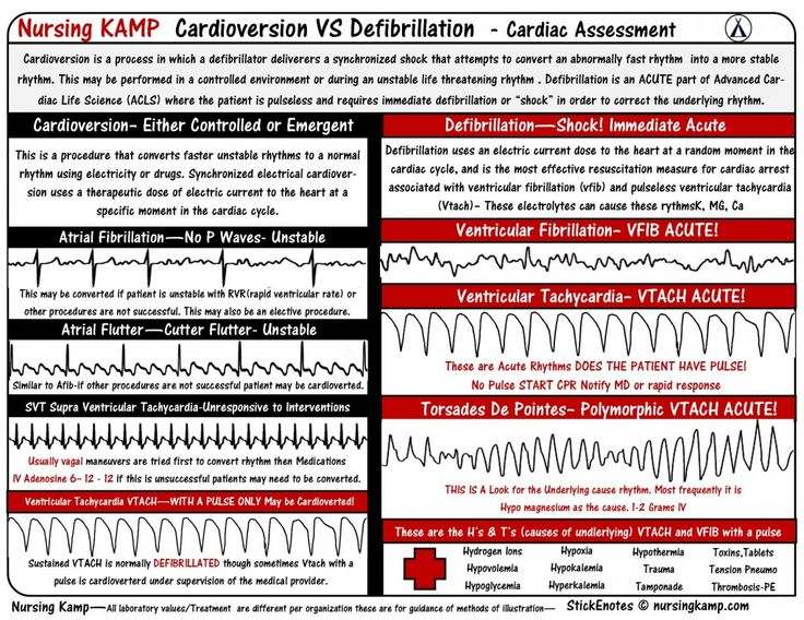 nursingkamp.com Cardiac Cardioversion VS Defibrillation Defibrillation vs Cardioversion Defibrillation is used to shock patients with threatening rhythms with no pulse patients are usually requiring CPR in between rhythm shocks by a defibrillator. Cardioversion is a shock that is used to convert a rhythm that they might walk in to get it converted or may have this rhythm that becomes unstable so we cardiovert to a normal more stable rhythm ECG EKG Telemetry Nursing Kamp Nursing Students