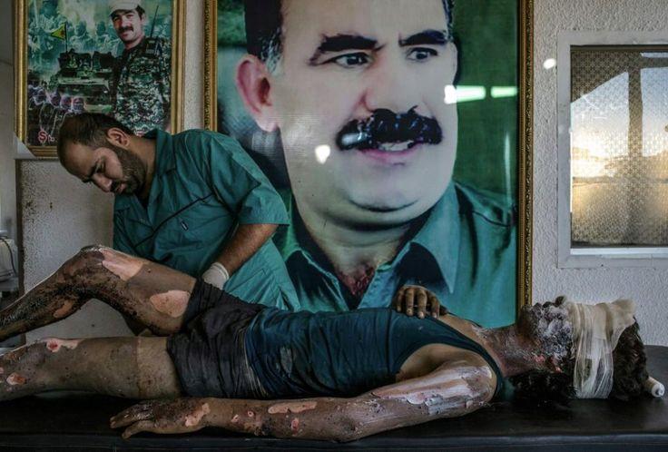 Mauricio Lima, Brazil, 2015 for The New York Times, IS Fighter Treated at Kurdish Hospital    Kurdyjski lekarz zajmuje się poparzonym 16-latkiem walczącym dla Państwa Islamskiego. Fotografia zdobyła 1. Nagrodę w kategorii General News. Na ścianie za bojownikiem widać portret uwięzionego lidera Partii Pracujących Kurdystanu Abdullaha Öcalana. Zdjęcie wykonane w Syrii, 1 sierpnia 2015