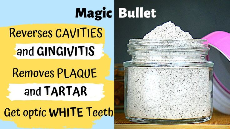Reverse Cavities and Gingivitis, Remove Tartar and Plaque