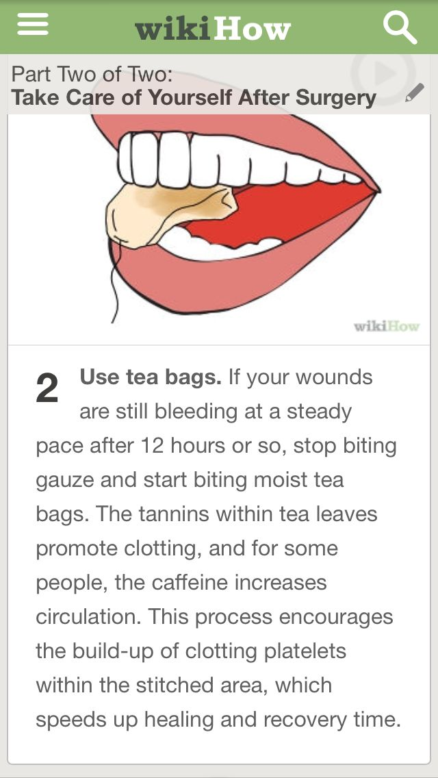 24 best Dry Socket/Tooth Aches/Lost fillings images on Pinterest ...