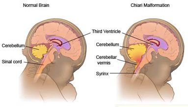 image drawing of chiari malformation in the brain compared to a normal brain.