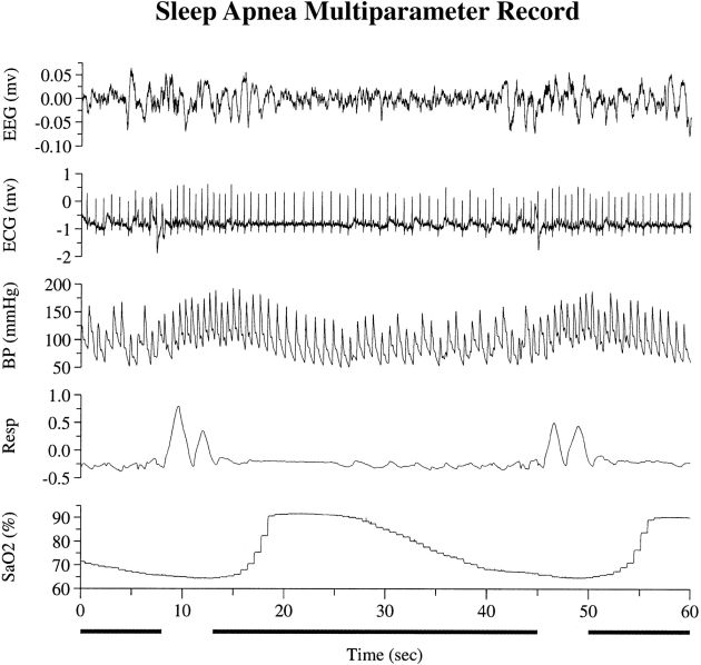 Inspire sleep apnea study cost