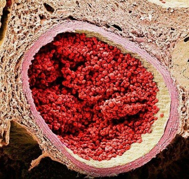 Straordinaria immagine ottenuta con microscopico elettronico a scansione: si tratta di una sezione trasversale di aorta fetale.   Da notare il livello di dettaglio degli eritrociti (globuli rossi).  Photo Credit: Steve Gschmeissner