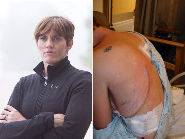 Left: Former Sydney Olympian in Judo, Kim Ribble-Orr in Burlington on July 3, 2013. Right: Ribble-Orr shows the aftermath of her surgery to remove an infection she endured after her lung was pierced by an acupuncture needle.