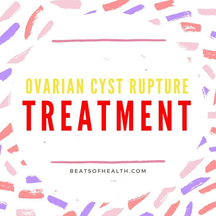 ruptured ovarian cyst treatments burst remedies
