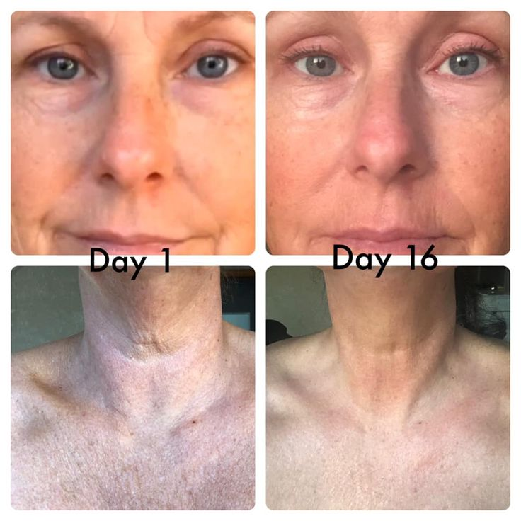 Heal your skin, reduce wrinkles, minimize age spots with