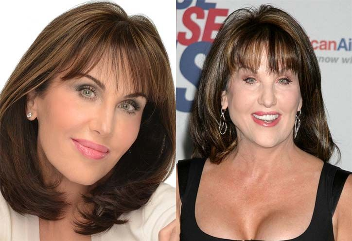 Robin McGraw facelift plastic surgery before and after