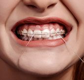 Frenillos y seda dental