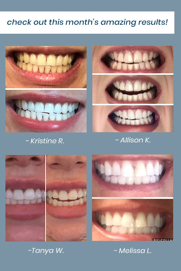 Alleviate Snow Teeth Whitening