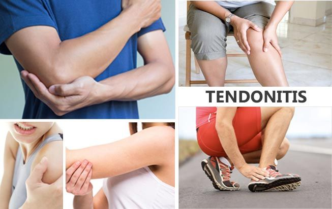 All you need to know about Tendinitis?