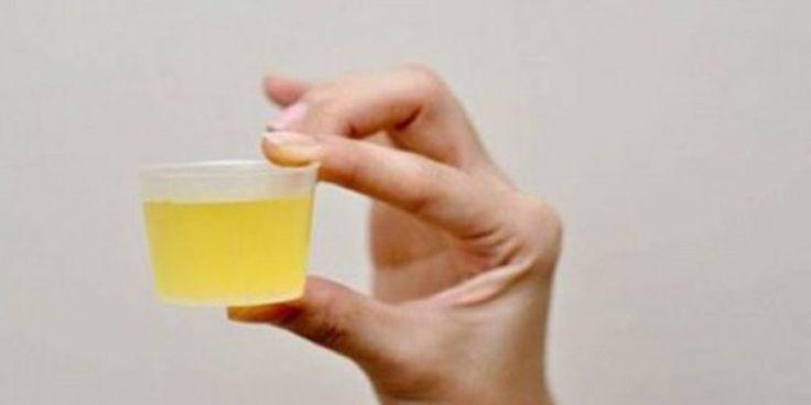We hebben allemaal weleens gehoord dat de consumptie van citroenwater in de ochtend gezond is, maar weinigen van ons kennen de precieze voordelen van de procedure. Het drinken van warm citroenwater op een lege maag heeft veel voordelen voor de gezondheid. Citroensap is rijk aan flavonoïden, kalium, antioxidanten, eiwitten, vitaminen zowel B en C. Tevens …