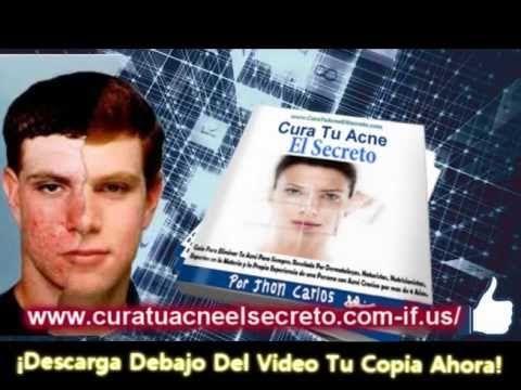 Cura Tu Acne El Secreto Prevencion y tratamiento del acne - http://solucionparaelacne.org/blog/cura-tu-acne-el-secreto-prevencion-y-tratamiento-del-acne/