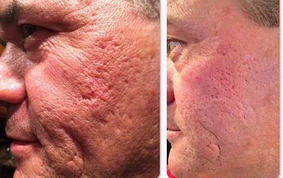 Men love it too! Not to late to reduce damage from acne. More Real Results with NeriumAD! All our pictures are supplied by the customer, none of these are retouched or submitted by Nerium the company. You are seeing REAL RESULTS. www.karijudy.neriumproducts.com