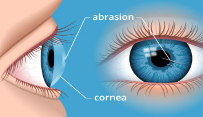 Natural Corneal Abrasion Relief How To Relieve A Scratched Eye Corneal Abrasion Corneal Scratched Cornea