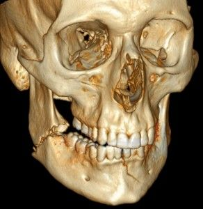 U.S. Army is Researching 3D Printing & its Potential in Facial Reconstruction Surgery #PSHubcosmeticsurgery #PSHubplasticsurgery #PSHubsurgicalprocedures #PSHubCosmeticReconstructiveSurgery #SurgicalProceduresAustralia #plasticsurgeryaustralia #plasticsurgeryhub