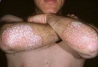 Forces Your Body to Heal Psoriasis Psoriasis Natural Treatment BLOG: What Does Psoriasis Look Like? REAL PEOPLE. REAL RESULTS. 160,000+ Psoriasis Free Customers