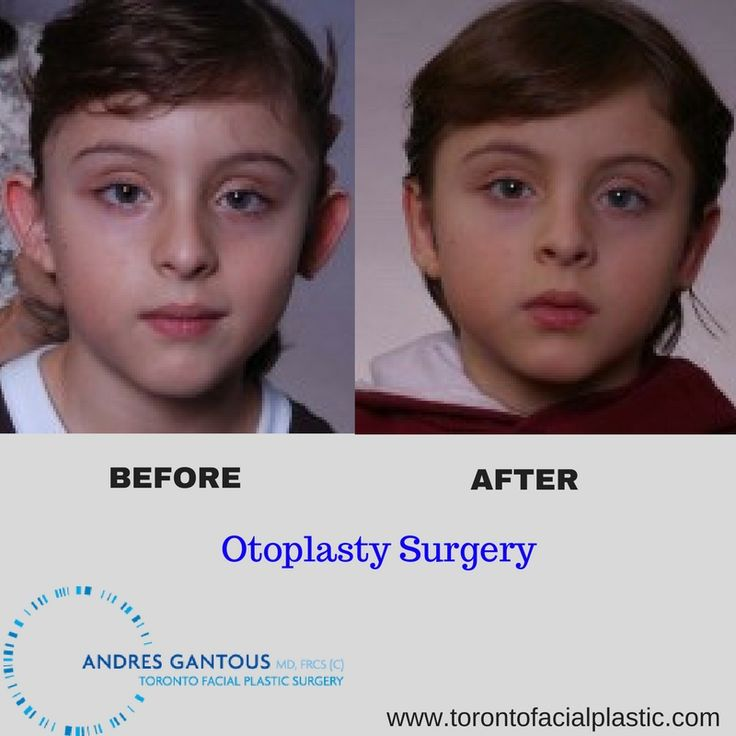 Here is the before and after photo of an #Otoplasty or #earsurgery