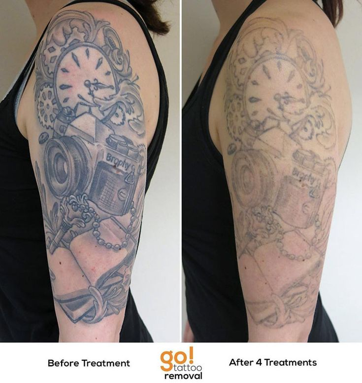 Half Sleeve Tattoo Cost: 840 Best Tattoo Removal In Progress Images On Pinterest