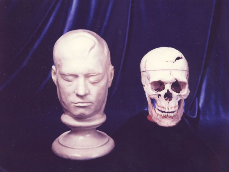 phineas-gage-life-mask-and-skull-4