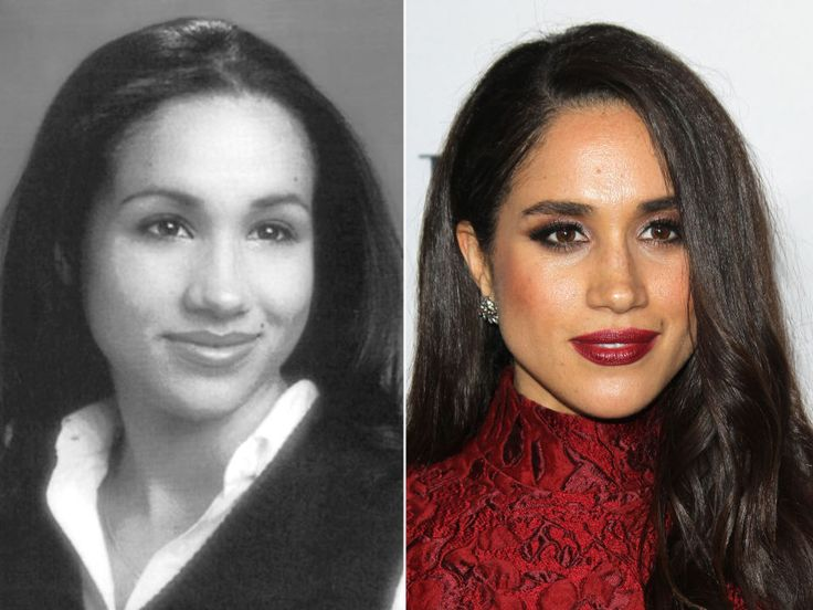 Meghan Markle plastic surgery before and after pictures and more about her in Celebrity Plastic Surgery magazine...