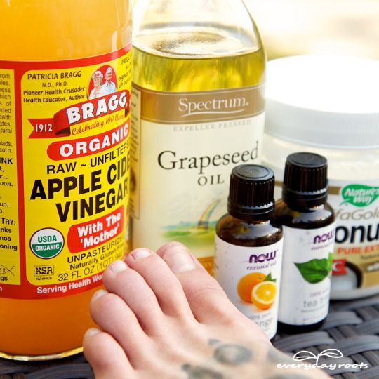 3 Simple Home Remedies for Toenail (or fingernail) Fungus ~ get rid of your toenail (or fingernail) fungus at home. It is most often caused by moisture trapped in a warm dark place (because of shoes, this is why it more commonly effects toenails) which is the environment fungus thrives in. Love the idea to use Coconut Oil as a preventative, even Baking Soda and Vinegar will help.