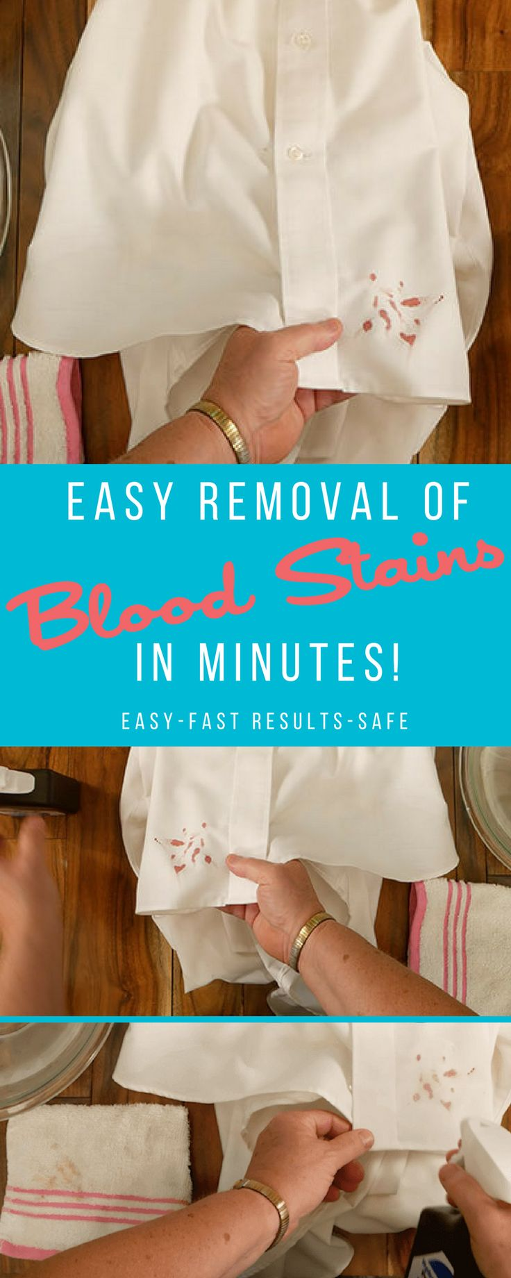 Removing Blood Stains Blood stain removal, Blood stains