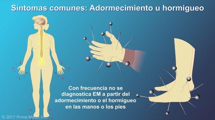 El adormecimiento o el hormigueo en las manos o los pies es otro síntoma común de las primeras etapas, pero generalmente no se diagnostica EM a partir de esos síntomasslide show: explicación de la esclerosis múltiple. en esta presentación de diapositivas se describen las causas, los síntomas comunes y la naturaleza de la esclerosis múltiple, así como distintos tipos de farmacoterapias utilizadas para el tratamiento de la enfermedad.