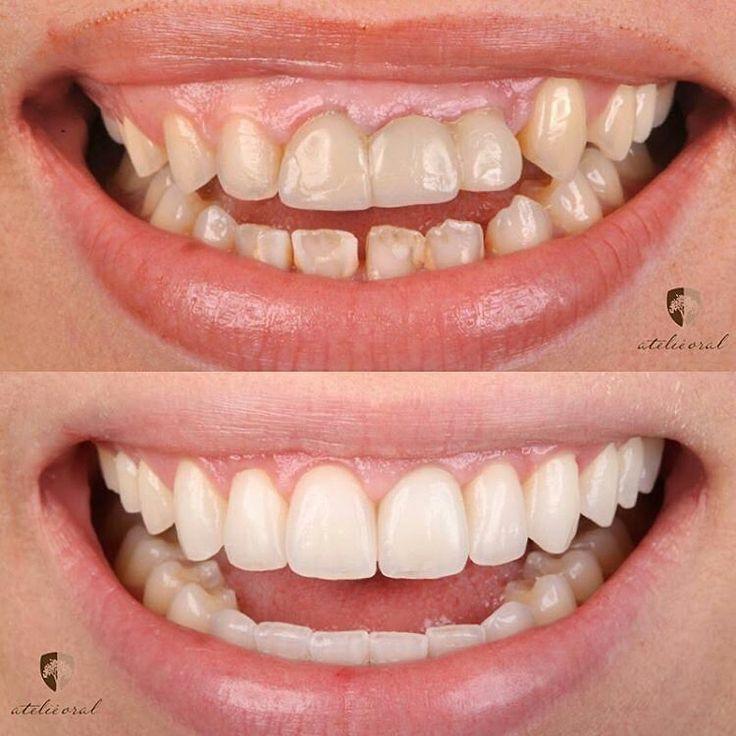 @Regrann from @guto_giordani -  Tratamento interdisciplinar realizado pela equipe @atelieoral buscando sempre nossa missão: Fazer as pessoas felizes!!! ✅Ortodontia com miniplacas ✅Cirurgia plastica periodontal (aumento de coroa clinica dentes 11 a 16 e recobrimento radicular dente 23) ✅Implante na região 21 ✅Laminados cerâmicos superiores e inferiores. Trabalho laboratorial realizado pelo grande amigo Leonardo Bocabella e @lab_precision  #atelieoral #muitoalemdosdentes #Regrann