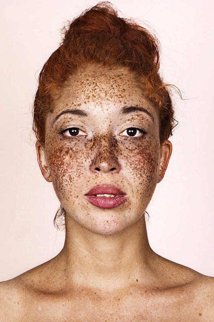 Le traitement la pigmentation de la peau de la personne de la raison