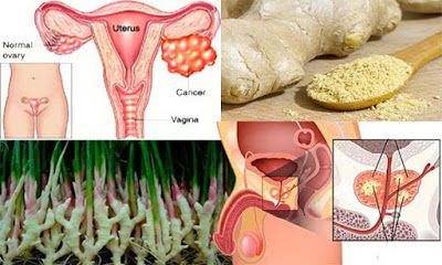 Daily Health Tips: Research Shows: Ginger Destroys Prostate Cancer, Ovarian And…