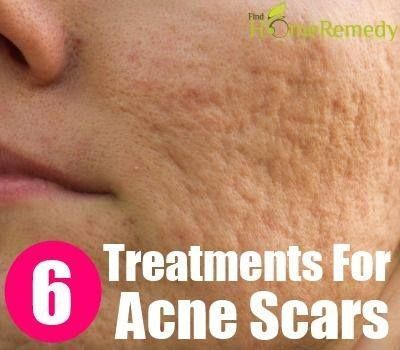 Scar Removing Natural Treatments For Acne Scars :: Click the link to read more….