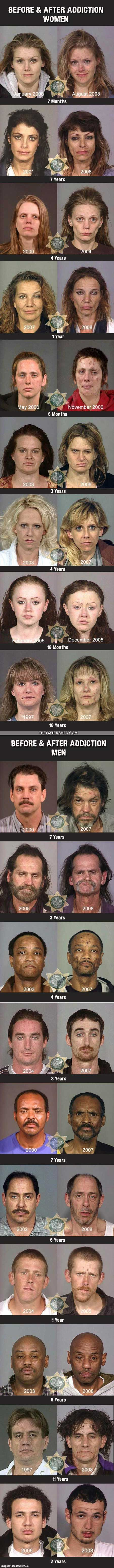 From drugs to mugs: Meths devastating effects (images)