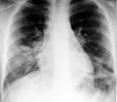 Example of bilateral lower lobe opacities on CXR in a patient with Mycoplasma pneumoniae.