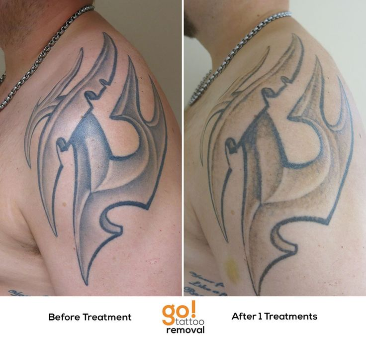 10 best images about tattoo removal in progress on for Washing a new tattoo