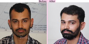 The #baldness #problem can be completely removed the life of the people with #FUE #hair #transplant treatment.