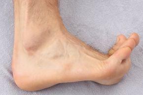 Das Anziehen der Zehen - die sog. Dorsalexension - erzeugt eine Dehnung der Plantarsehne. Diese Dehnung verstärkt den Fersen-Schmerz © www.fuss-sprunggelenk-akademie.de