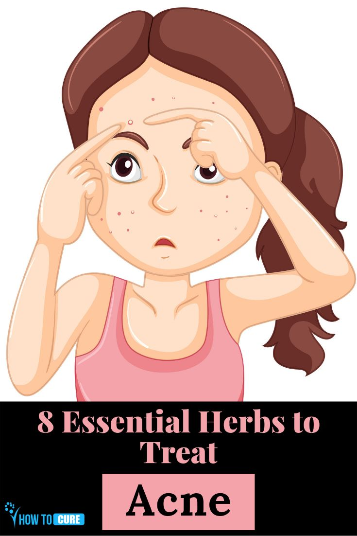 8 Essential Herbs To Treat Acne – HowToCure