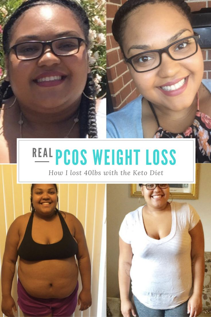 Find out how I lost 40 lbs with PCOS on the Ketogenic diet. Keto diet. PCOS weight loss. Keto weight loss