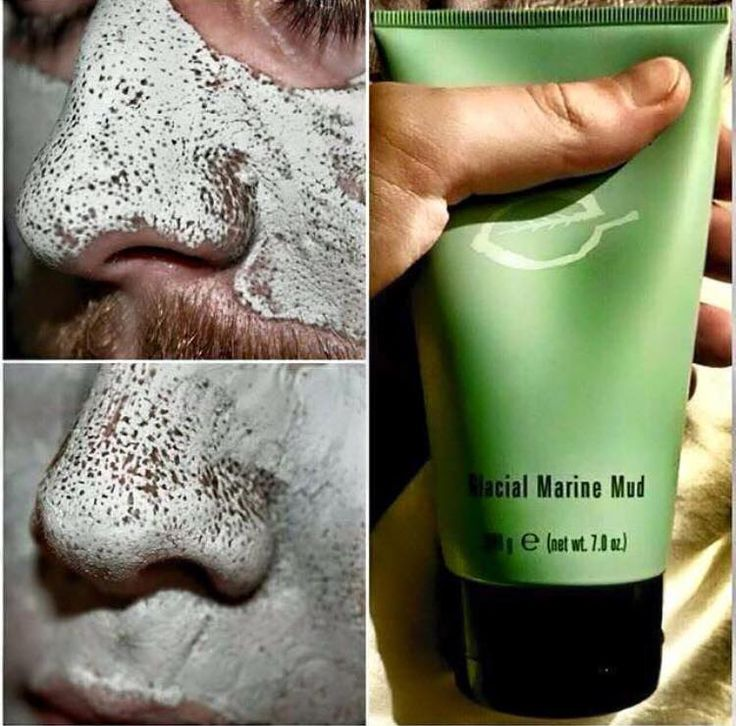 Glacial Mud Mask (part of the epoch range) Do you suffer from black heads? Acne? Or are you plagued with spots and blemishes? This amazing product draws out toxins and impurities in the skin so you can actually see them..!! -contains sea botanicals -absorbs dead skin cells & excess oil -draws out impurities & deep cleans pores   https://www.facebook.com/groups/631907220347618/