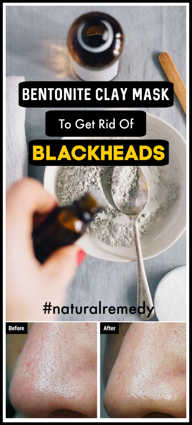 Bentonite clay mask to get rid of blackheads naturally and fast