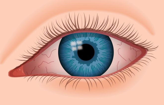 As shown here, dry eyes can become red and irritated.