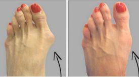 Voici comment se débarrasser des oignons de pieds naturellement