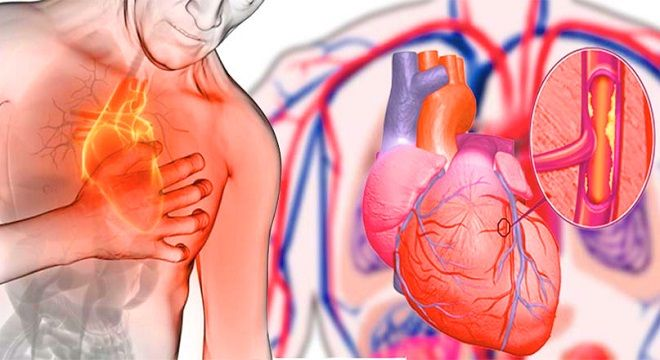 Las enfermedades del corazón basicamente son unas de las principales causas de muerte en muchos países de nuestro mundo. La obstrucción de las arteriashace que el flujo sanguíneo, lo que aumentaelriesgo de sufrir un infarto o una embolia cerebral. El estrés, la falta de ejercicio y una alimentacionpoco saludablecontribuyen a aumentar el riesgo de infartos. En cambio,unos pequeños cambios en tu dieta puedes ayudarte a reducir drásticamente este riesgo. A continuación te detallamos…