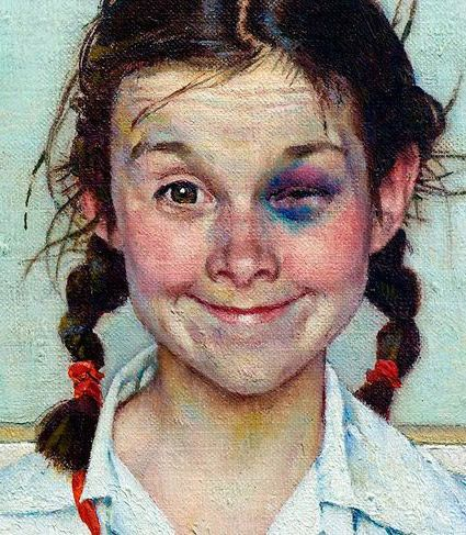 """Shiner"" (Girl with Black Eye) - Norman Rockwell, 1954, American illustrator {humorous young girl face portrait painting detail} Champ !!"